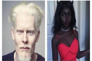 Δείτε το: 8 υπέροχοι άνθρωποι που γεννήθηκαν με ιδιαίτερο χρώμα δέρματος! (Photos)