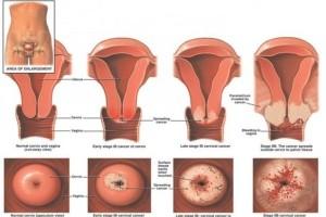 Αυτά είναι τα συμπτώματα που εμφανίζουν καρκίνο αιδοίου και κόλπου! Κορίτσια τεράστια προσοχή!