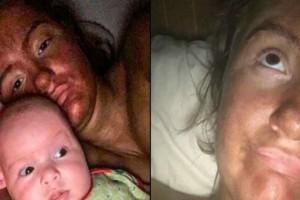 Γυναίκα που ήθελε να μαυρίσει κοιμήθηκε την πιο ακατάλληλη στιγμή: Όταν ξύπνησε ήταν πια πολύ αργά... (Photos)