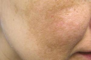 6 φυσικοί τρόποι για να αντιμετωπίσετε τους αποχρωματισμούς του δέρματος!