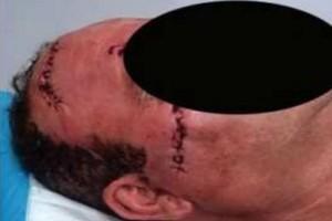 Απίστευτο ξύλο στην Πάτρα: Έκανε 40 ράμματα μετά από καυγά με την γιατρό της γυναίκας του!