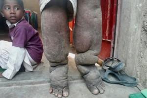 Απίστευτο κι όμως αληθινό: Αυτός είναι ο άνθρωπος που γεννήθηκε με πόδια... ελέφαντα! (Photo & Video)