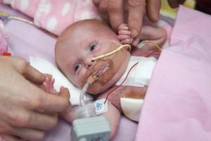Κοριτσάκι στην Αγγλία γεννήθηκε με την καρδιά έξω από το σώμα! (photos)