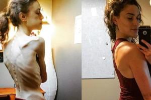 Η συγκλονιστική ιστορία μιας 22χρονης που έφτασε να ζυγίζει 30 κιλά και παραλίγο να πεθάνει (Photos)