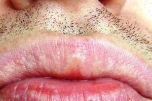 Λευκές κηλίδες στα χείλη: Ποιες σοβαρές ασθένειες καταδεικνύουν  (Photos)
