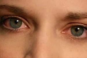 Φρικιαστικό περιστατικό: 20χρονη ξερίζωσε τα μάτια της υπό την επήρεια ναρκωτικών!
