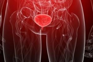 Αυτά είναι τα συμπτώματα της ουρολοίμωξης: Τι να κάνετε για να απαλύνετε τον πόνο