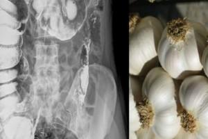 Θα τρίβετε τα μάτια σας! Δείτε τι συμβαίνει αν φάτε το πρωί σκόρδο με άδειο στομάχι!