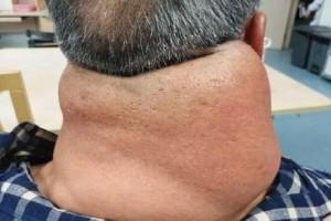 Αδιανόητο: Αυτός είναι ο σοκαριστικός λόγος που του προκάλεσε τεράστιο όγκο στον λαιμό επι 21 χρόνια!