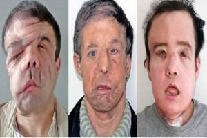 Ο άνθρωπος που έχει τρία πρόσωπα: Ο πρώτος που έκανε 2 μεταμοσχεύσεις προσώπου! (Photos)
