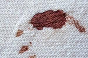 Πως να καθαρίσεις το λεκέ αίματος από τα σεντόνια;