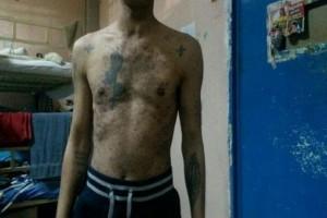 «Μπαίνεις ζωντανός, βγαίνεις πεθαμένος»: Σοκαριστική μαρτυρία για το νοσοκομείο των φυλακών Κορυδαλλού (photos)