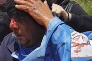 Σοκαριστικές εικόνες: Η ματωμένη σημαία και ο τραυματισμένος διαδηλωτής έκαναν τον γύρο του διαδικτύου!