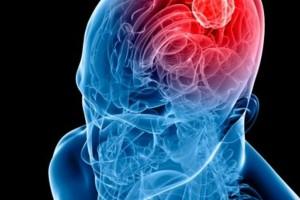 """Όγκος στον εγκέφαλο: Τα 8 συμπτώματα που δείχνουν ότι κάτι """"τρέχει"""""""