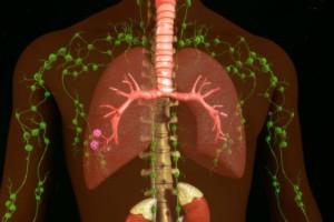 Λέμφωμα – πρόληψη: Πώς γίνεται η αποτοξίνωση στους λεμφαδένες