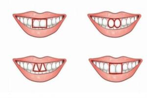 Είναι πολύ εύκολο να εντοπίσετε έναν εγωιστή! Απλά ρίξτε μια ματιά στα μπροστινά του δόντια!
