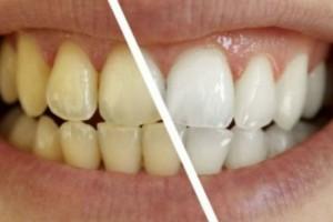 """Κάντε τα δόντια πιο λευκά σε 3 λεπτά με αυτό το """"μαγικό"""" διάλυμα!"""