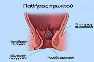 Καρκίνος πρωκτού: Αν έχετε αυτά τα συμπτώματα τρέξτε αμέσως στον γιατρό!