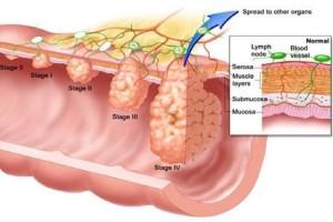 Καρκίνος του παχέος εντέρου: Αν έχετε αυτά τα συμπτώματα τρέξτε αμέσως στον γιατρό!