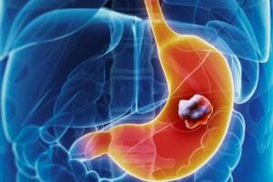 Καρκίνος του στομάχου: Τα πρώιμα σημάδια που τα μπερδεύουμε με άλλες παθήσεις