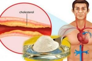 Αυτή η σπιτική συνταγή είναι το καλύτερο φάρμακο κατά της χοληστερίνης και της υψηλής αρτηριακής πίεσης!