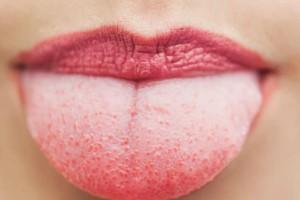 Κόκκινες κηλίδες στη γλώσσα: Με ποιες ασθένειες συνδέονται