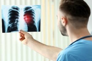 Πώς ένα απλό κρυολόγημα μετατρέπεται σε πνευμονία: Τι να προσέχετε
