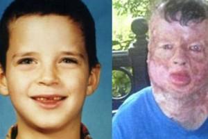 Όταν ήταν 8 ετών τον βίασαν και τον έκαψαν ζωντανό - 13 χρόνια μετά και λίγο πριν ξεψυχήσει, αποκάλυψε τον πραγματικό ένοχο…