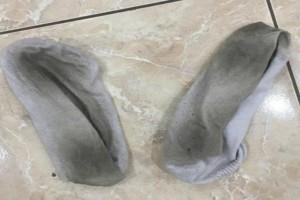 H απαίσια συνήθεια του να να μυρίζει τις φορεμένες κάλτσες του τον έστειλε στο νοσοκομείο!