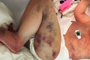 Μόλις είδε το παιδί της σ' αυτή την κατάσταση της κόπηκαν τα πόδια! Δεν πίστευε αυτό που είχε συμβεί!