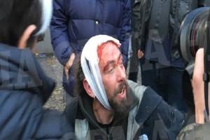 Συλλαλητήριο για τη Μακεδονία: Δολοφονική επίθεση σε φωτορεπόρτερ! -  Στο νοσοκομείο ανταποκριτής του Sputnik!