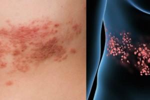 Έρπης ζωστήρας: Συμπτώματα και τι πρέπει να κάνετε!