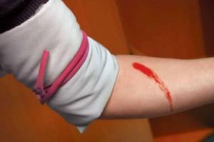 Δώστε βάση: Τι κάνουμε σε περίπτωση αρτηριακής αιμορραγίας;