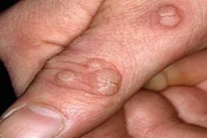 Αντιμετωπίστε μόνοι σας τα δερματικά κονδυλώματα (μυρμηγκιές)!