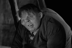 Κουασιμόδος: Εκτός από την περίεργη όψη είχε και μια ασηνίθηστη ασθένεια!