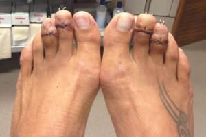 Αδιανόητο: Γυναίκες κόβουν τα δάχτυλα των ποδιών τους για να φορούν πέδιλα!