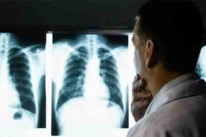 Είχε πόνους για 23 χρόνια στην κοιλιά και οι γιατροί έμειναν άφωνοι με αυτό που αντίκρισαν....