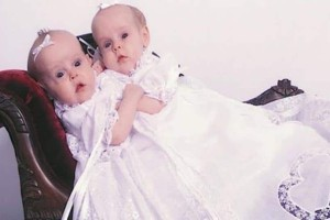 To 2002 γεννήθηκαν τα πιο σπάνια δίδυμα σιαμαία. Σήμερα είναι δυο πανέμορφες κοπέλες που ζουν ξεχωριστά τη ζωή τους! (Video)
