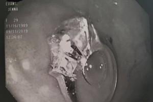 Ο εφιάλτης της έγινε πραγματικότητα! Κατάπιε το μονόπετρό της! (photos-video)