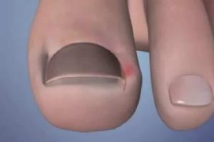 Αν γυρνάνε τα νύχια των ποδιών και μπαίνουν στο κρέας, μη στενοχωριέστε, υπάρχει λύση!