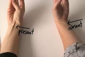 Πετάγεται ο τένοντας στον χέρι σας; Δείτε τι σημαίνει (video)