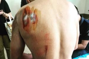 Αγρίνιο: Με κατάγματα στο νοσοκομείο αστυνομικός που του επιτέθηκε σκύλος!