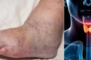 Αν παρατηρήσετε κάποιο από αυτά τα 5 ύπουλα συμπτώματα, τρέξτε αμέσως σε έναν γιατρό! Η υγεία σας βρίσκεται σε κίνδυνο…
