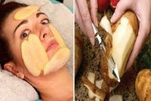 Πήρε μια πατάτα, την έκοψε φέτες και την άπλωσε στο πρόσωπό της! Αυτό που συμβαίνει θα σε αφήσει άφωνο!