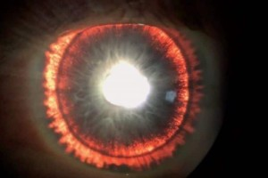 Τα μάτια 44χρονου «έβγαζαν φως»! «Άφωνοι» οι γιατροί!