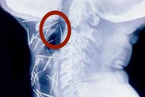 Είχε φρικτούς πόνους στο στήθος και δεν μπορούσε ούτε να κοιμηθεί! Η ακτινογραφία του θα σας παγώσει...