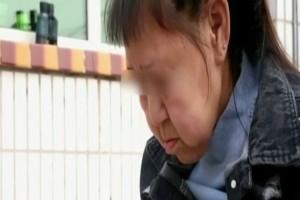 16χρονη έχει δέρμα 60χρονης! Η σπάνια ασθένεια που προκαλεί σοκ! (Video)