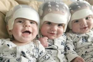 Τρίδυμα υποβλήθηκαν σε χειρουργική επέμβαση για να παραμείνουν στη ζωή...Η συνέχεια ραγίζει καρδιές!