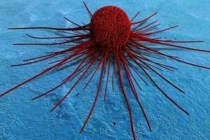 5+1 τρόφιμα που τρέφουν τα καρκινικά κύτταρα - Τα τρώμε οι περισσότεροι