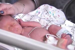 Ανατριχίλα: Πατέρας παρακολουθεί την νεογέννητη κόρη του από κάμερα σε μονάδα εντατικής θεραπείας! Αυτό που βλέπει τον αφήνει άναυδο!